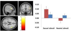brain studies