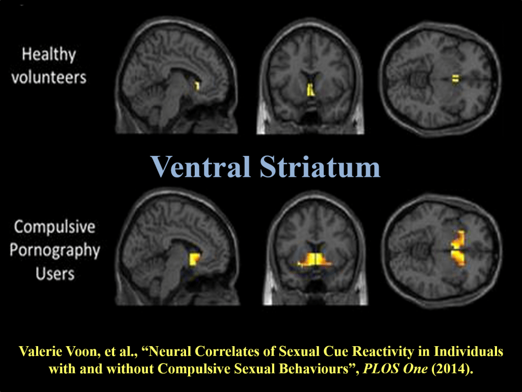 Neural correlates of sexual cue reactivity in individuals with and without compulsive sexual behaviours